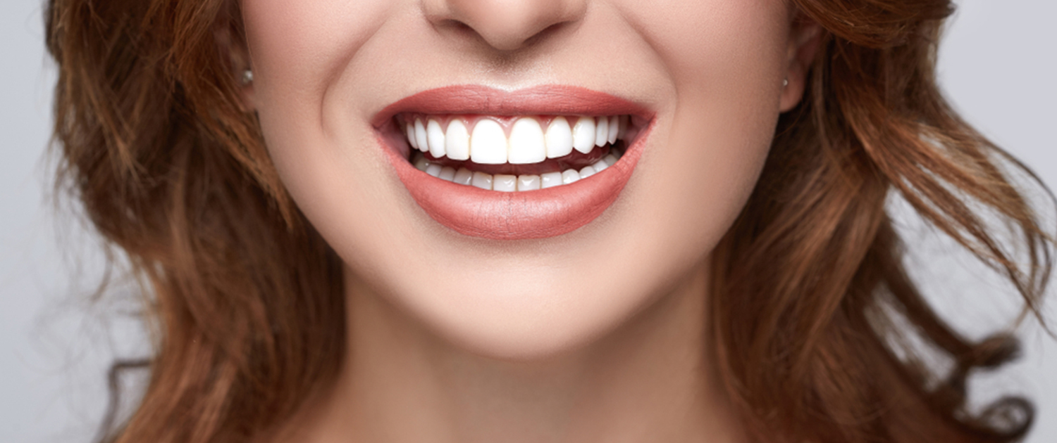 Teeth Whitening in Bristol