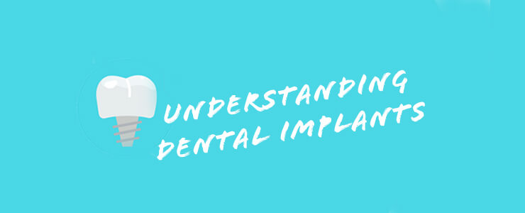 Bristol dental implants